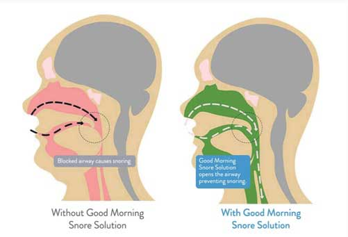 How Good Morning Snore Solution works
